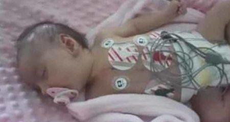 Mała Hania potrzebuje naszej pomocy - Grodzisk News